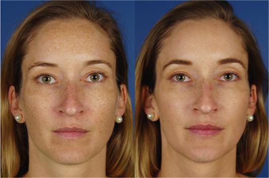 skin results 1