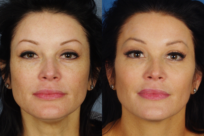 skin results 3