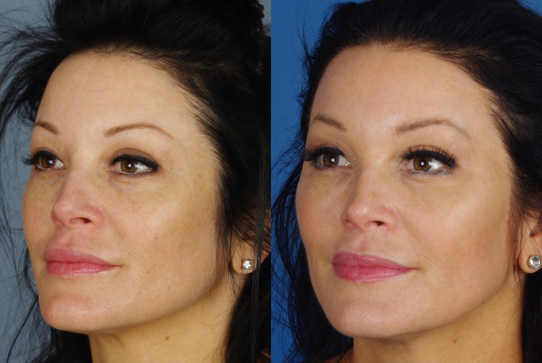 skin results 4