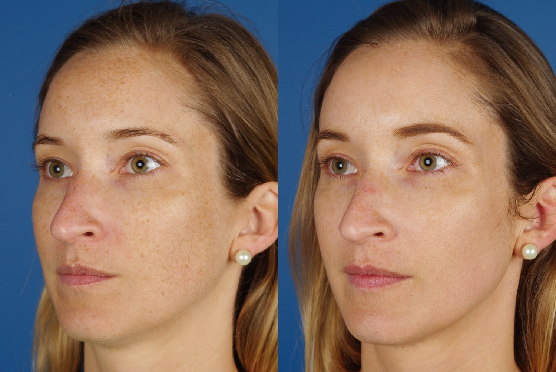 skin results 2