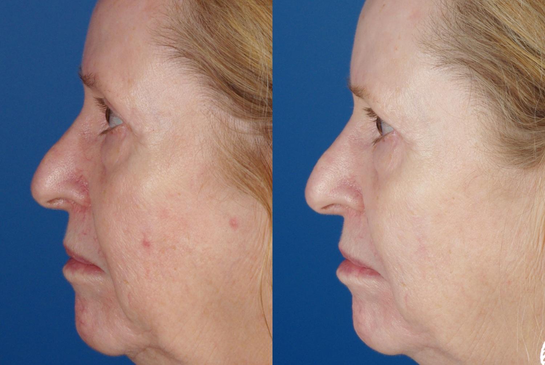 skin results 7