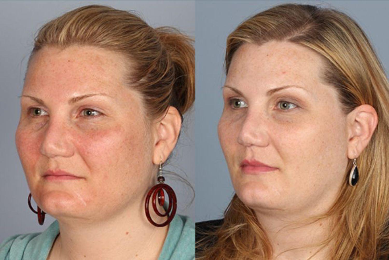 skin results 6