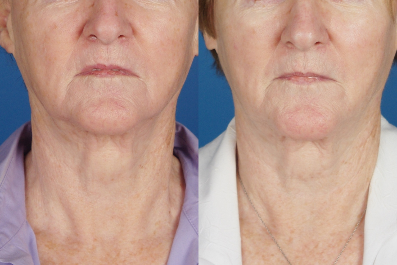 skin results 8